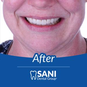 after sani dental group