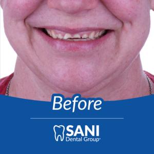Before Sani Dental Group