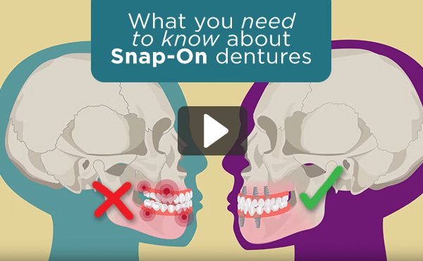 snap-on-dentures-mexico