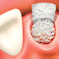 bone-graft-procedure